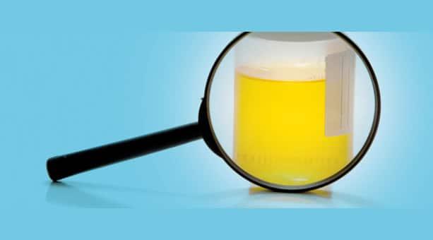 urine maleodoranti pipì che puzza